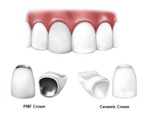 Crowns And Bridges Dentist Dr Corn 233 Smith