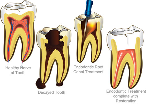 root canal therapy is usually needed when a tooth has undergone extensive decay or a fracture unfortunately with extensive decay and fractures comes pain