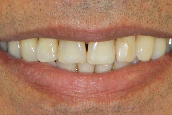 Smile Gallery Dental Treatment Photos Dr Corn 233 Smith