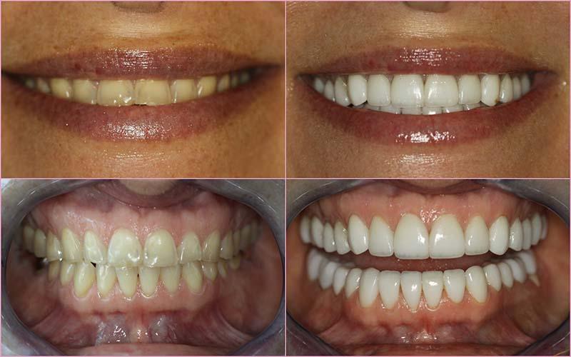 Smile Makeover Cosmetic Dentistry Dr Corne Smith